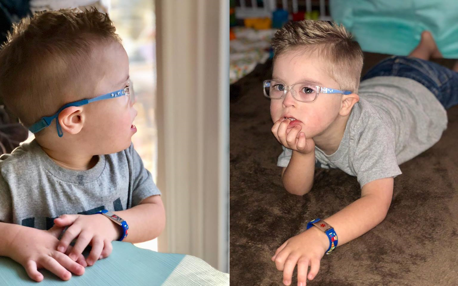 medical ids for kids with down syndrome
